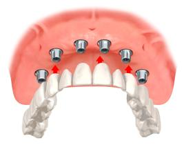 Zahersatz computernavigiert, Implantologie, Computernavigierte Implantologie, Zahn Implantat
