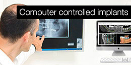 Computer-controlled implants