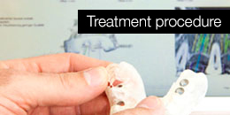 Treatment procedure